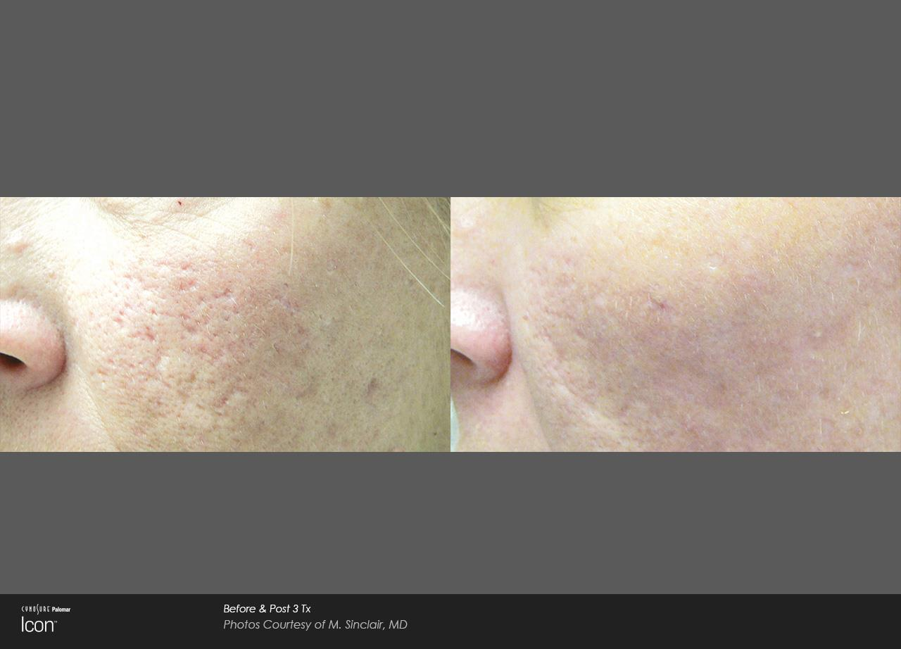 Scar removal_Avalon (1)