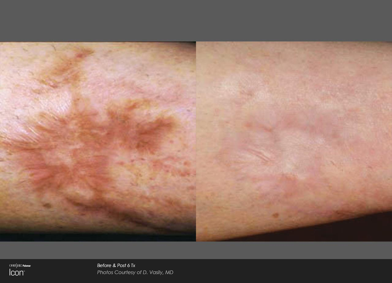 Scar removal_Avalon (2)