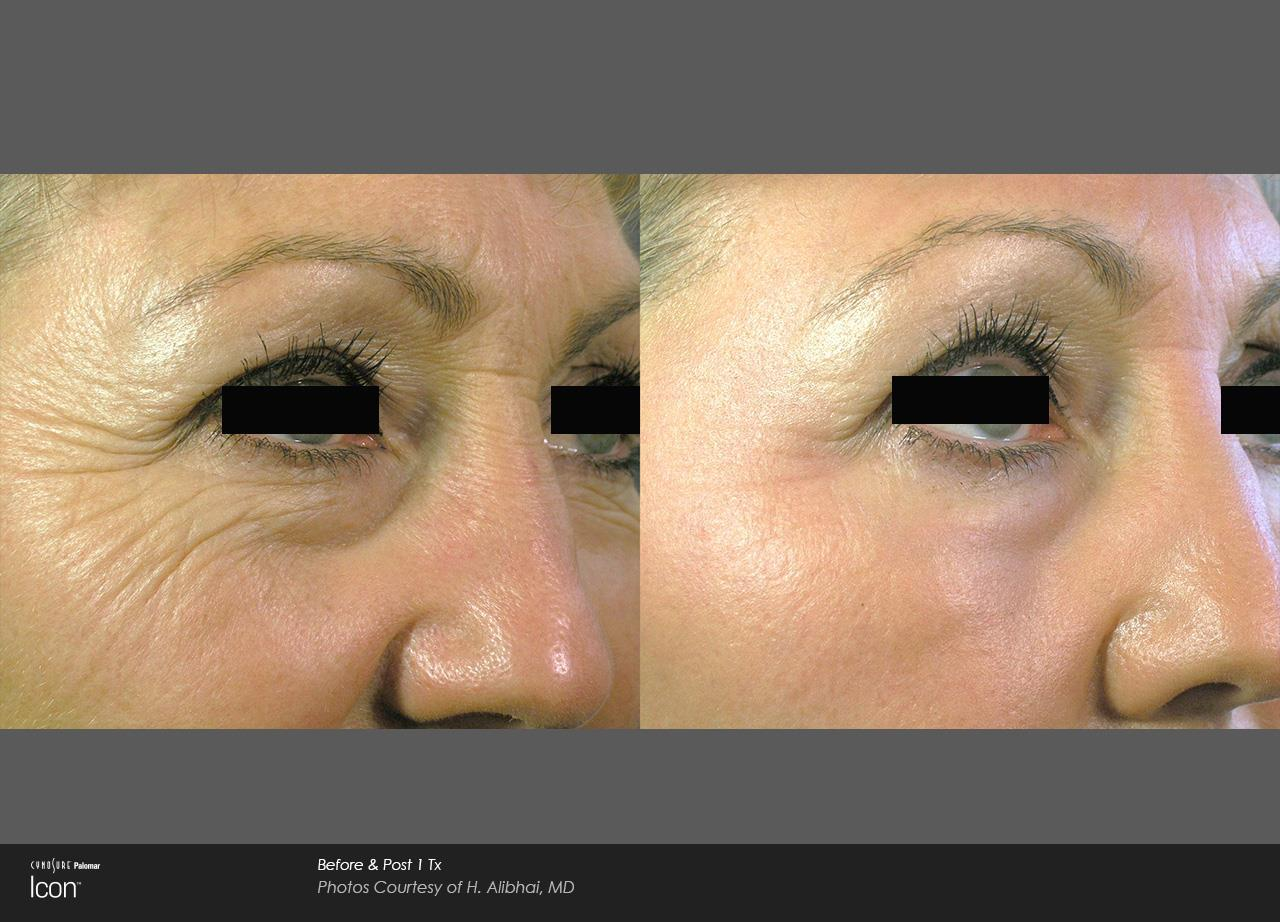Skin Resurfacing_Avalon (1)