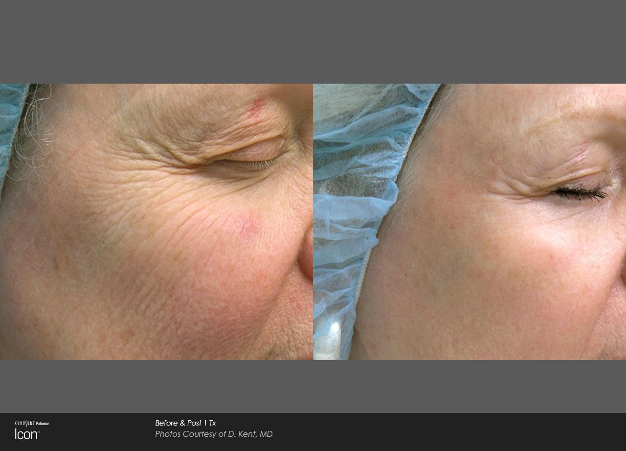 Skin Resurfacing_Avalon (2)