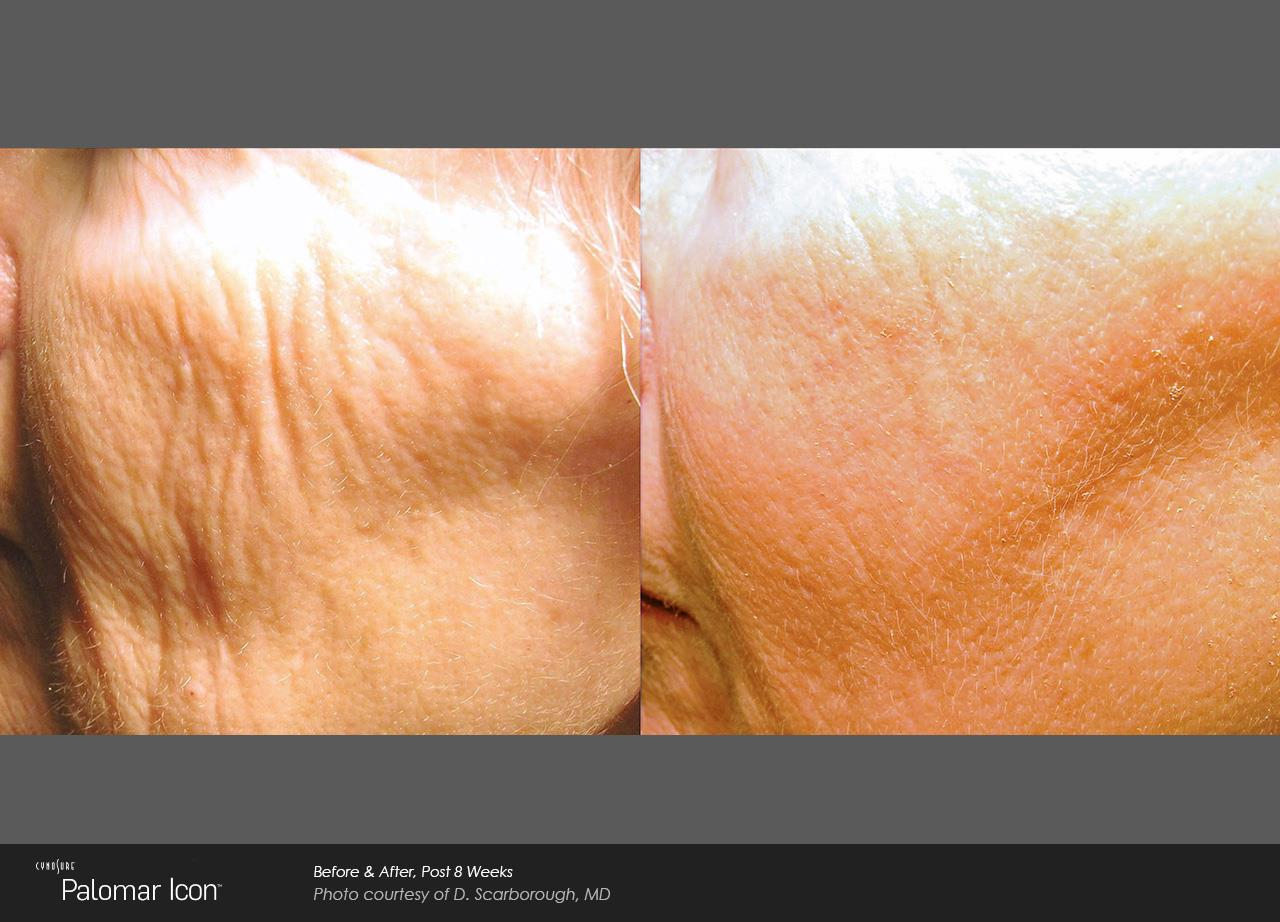 Skin Resurfacing_Avalon (3)