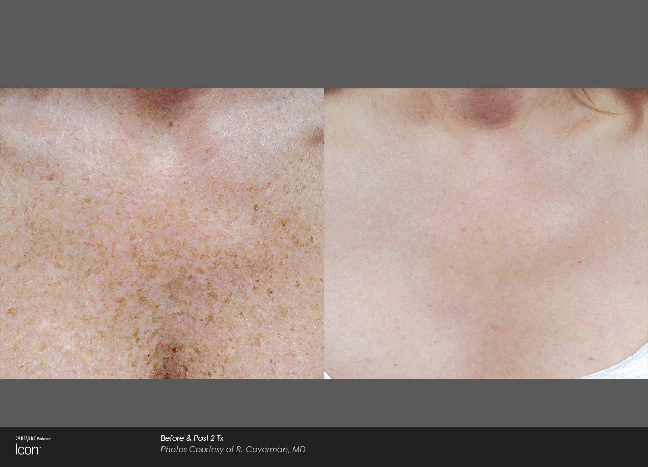 Skin Revitalization (4)