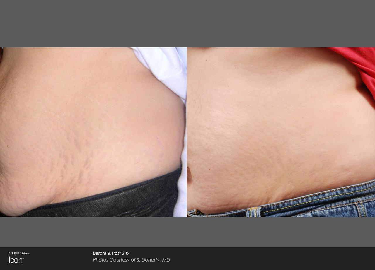Stretch mark reduction_Avalon (1)