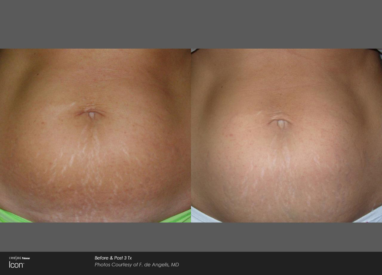 Stretch mark reduction_Avalon (3)