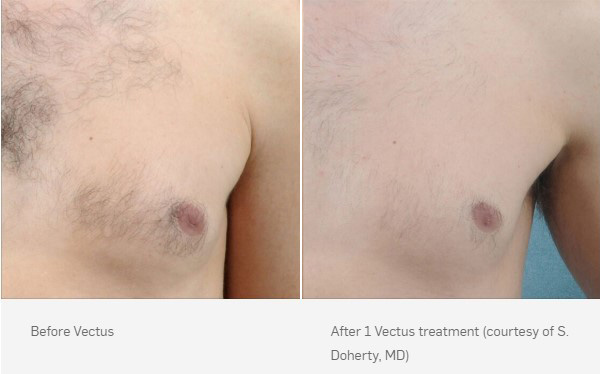 before-after-vectus-1
