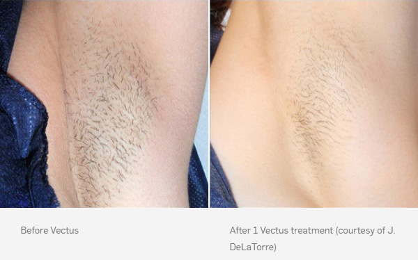 before-after-vectus-2