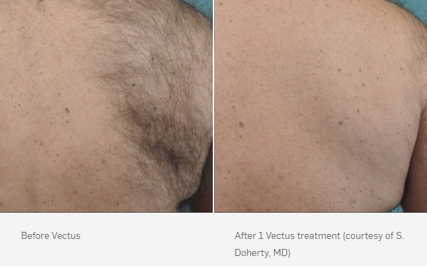 before-after-vectus-3
