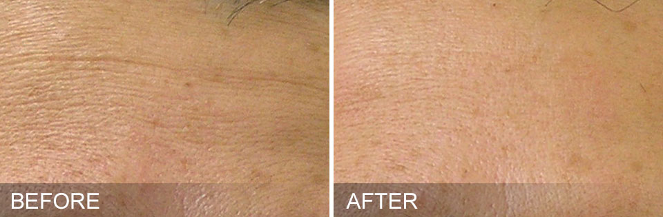 Before & After Fine Lines