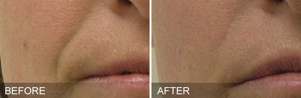 Before & After Nasolabial folds